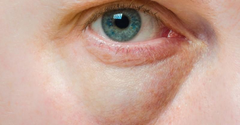 How to Get Rid of Dark Circles Under Eyes 800x416 - VERWIJDER DONKERE KRINGEN ONDER DE OGEN (10 BEWEZEN MANIEREN)