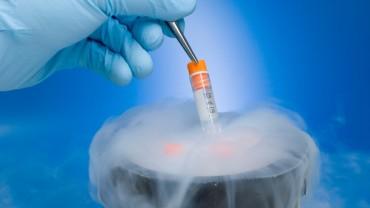 sperm-cryopreservation